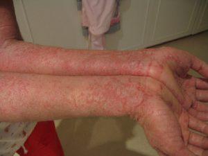 Atopický ekzém – alergická vyrážka, která umí pěkně potrápit